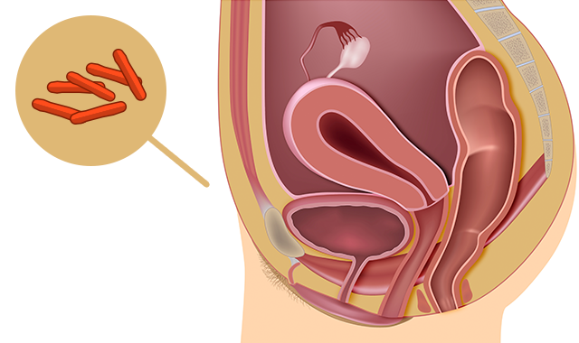 genital-tract-tuberculosis